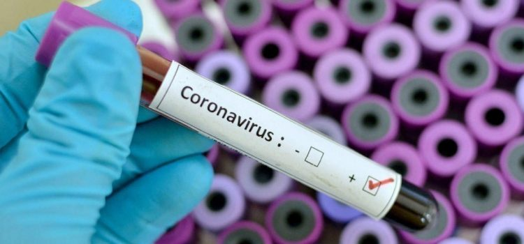 Позачергове засідання регіональної комісії з питань ТЕБ і НС  щодо протидії поширенню коронавірусної хвороби на території області